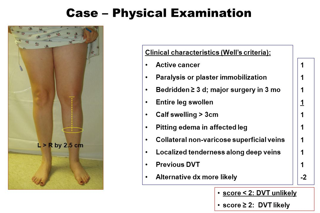 Clinical Suspicion for DVT unlikely likely neg no test, no anticoag.