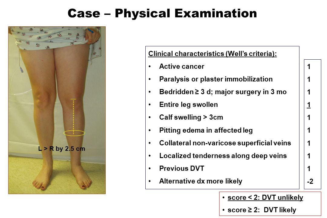 D-dimer pos Residual clot Elevated factor VIII Elevated factor IX Elevated factor XI Men > women [Thromb Haemost 2002;88:162-3] [NEJM 2000;343:457-62] [NEJM 2004;350:2558-63] [Blood 2003;102:abstract 1133] [Br J Haematol 2004;124:504-10] VIIID-dimer (on anticoagulants) XI IX [Blood 2004;103:3773-6] Residual clot [Thromb Haemost 2002;87:7-12] D-dimer (off anticoagulants) DVT Recurrence Rate [JTH 2006;4:1208-14]