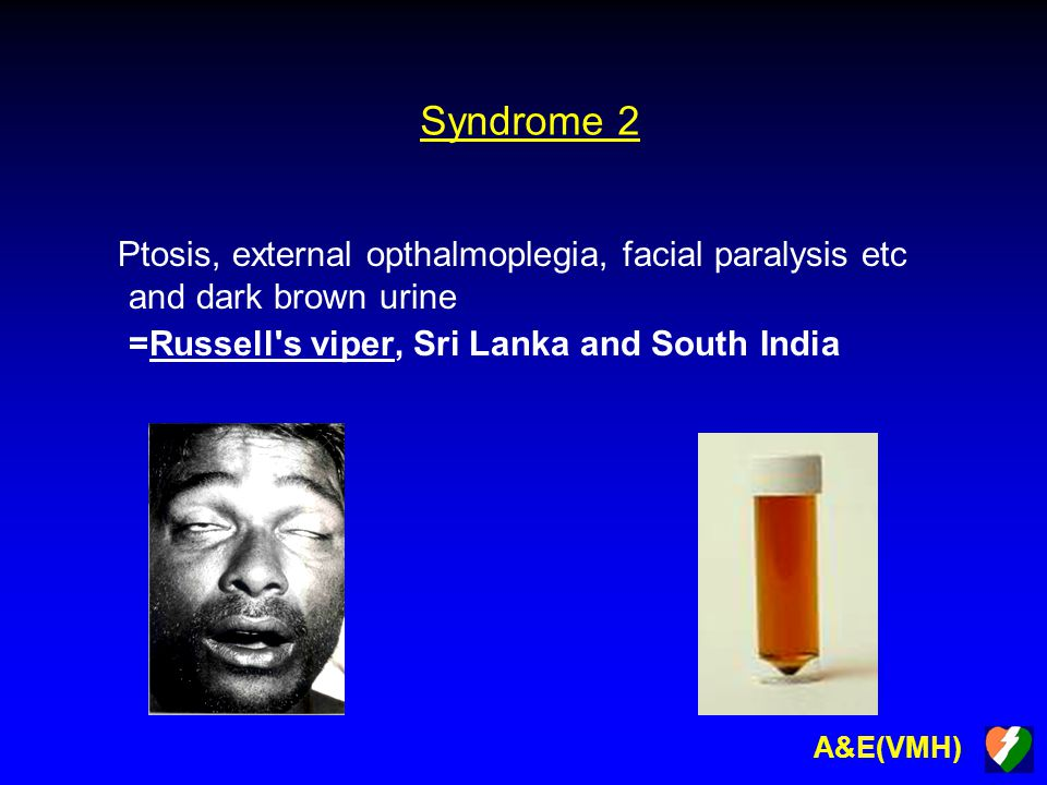 A&E(VMH) Syndrome 2 Ptosis, external opthalmoplegia, facial paralysis etc and dark brown urine =Russell's viper, Sri Lanka and South India