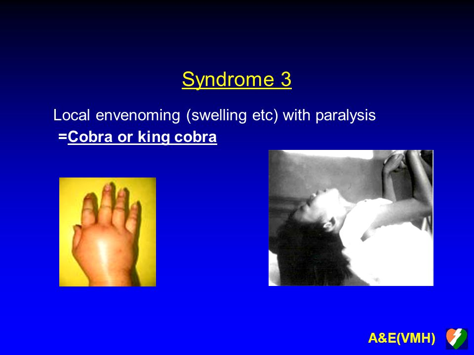 A&E(VMH) Syndrome 3 Local envenoming (swelling etc) with paralysis =Cobra or king cobra