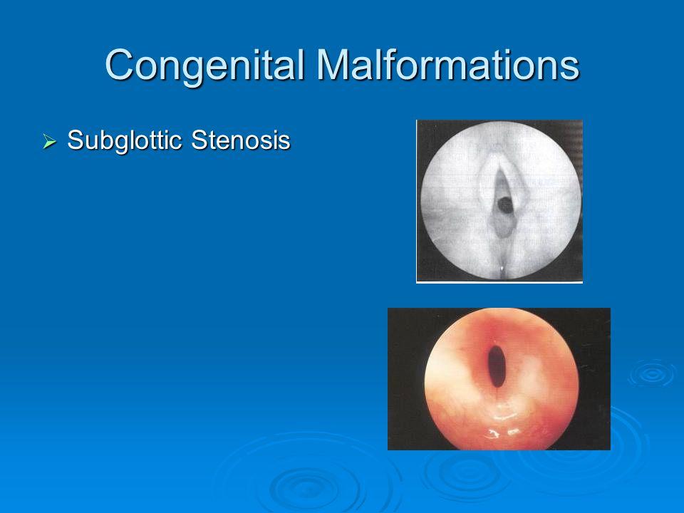 Congenital Malformations  Subglottic Stenosis