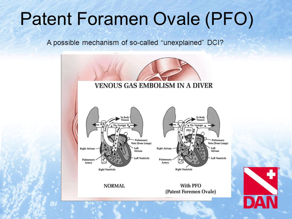 Patent Foramen Ovale (PFO) A possible mechanism of so-called unexplained DCI