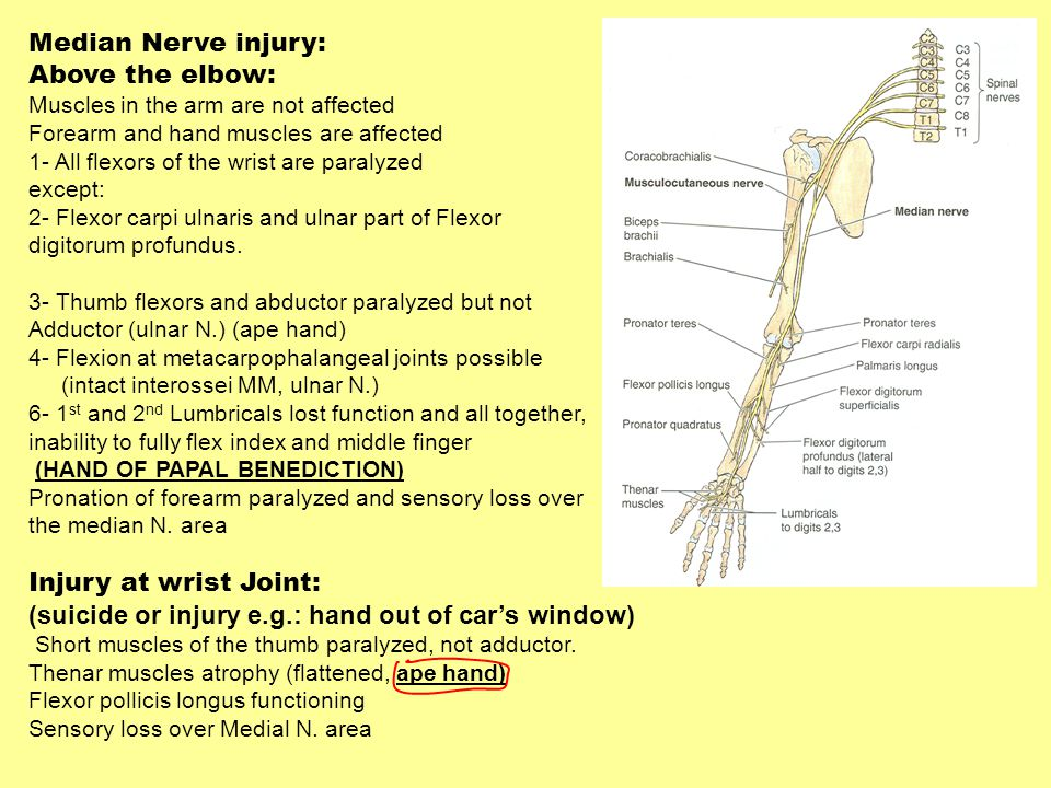 Median Nerve injury: Above the elbow: Muscles in the arm are not affected Forearm and hand muscles are affected 1- All flexors of the wrist are paraly