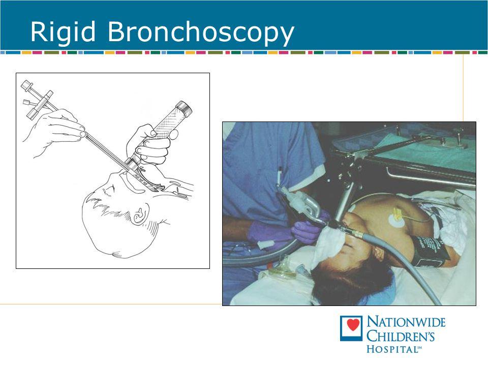 Rigid Bronchoscopy