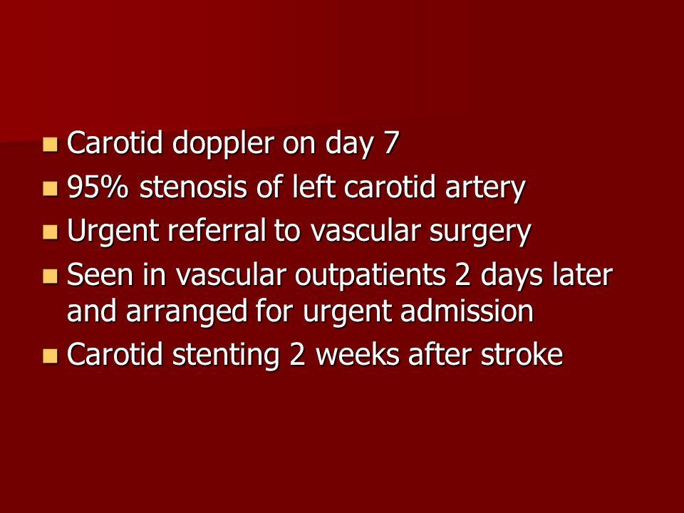Carotid doppler on day 7 Carotid doppler on day 7 95% stenosis of left carotid artery 95% stenosis of left carotid artery Urgent referral to vascular