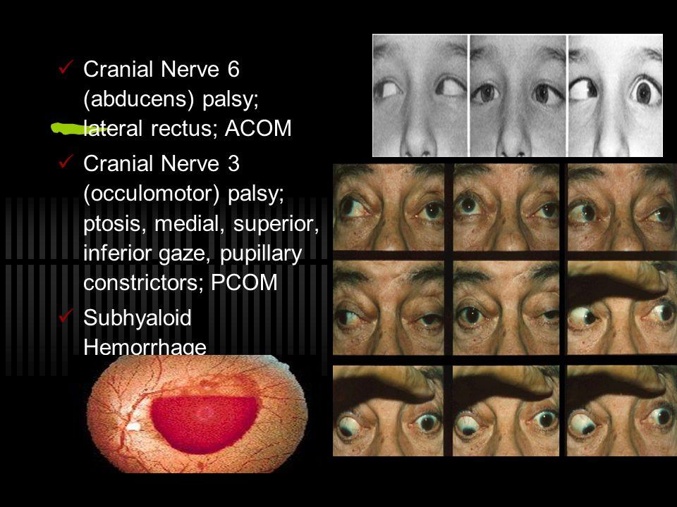 Cranial Nerve 6 (abducens) palsy; lateral rectus; ACOM Cranial Nerve 3 (occulomotor) palsy; ptosis, medial, superior, inferior gaze, pupillary constrictors; PCOM Subhyaloid Hemorrhage