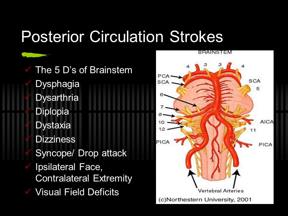 Posterior Circulation Strokes The 5 D's of Brainstem Dysphagia Dysarthria Diplopia Dystaxia Dizziness Syncope/ Drop attack Ipsilateral Face, Contralat
