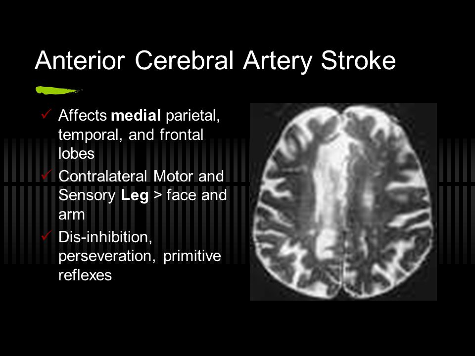 Anterior Cerebral Artery Stroke Affects medial parietal, temporal, and frontal lobes Contralateral Motor and Sensory Leg > face and arm Dis-inhibition