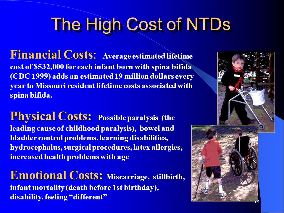 14 Financial Costs: Financial Costs: Average estimated lifetime cost of $532,000 for each infant born with spina bifida (CDC 1999) adds an estimated 19 million dollars every year to Missouri resident lifetime costs associated with spina bifida.