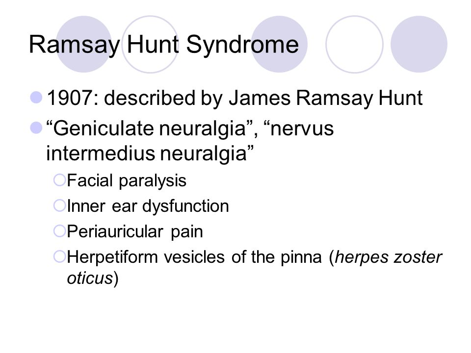 1907: described by James Ramsay Hunt Geniculate neuralgia , nervus intermedius neuralgia  Facial paralysis  Inner ear dysfunction  Periauricular pain  Herpetiform vesicles of the pinna (herpes zoster oticus)