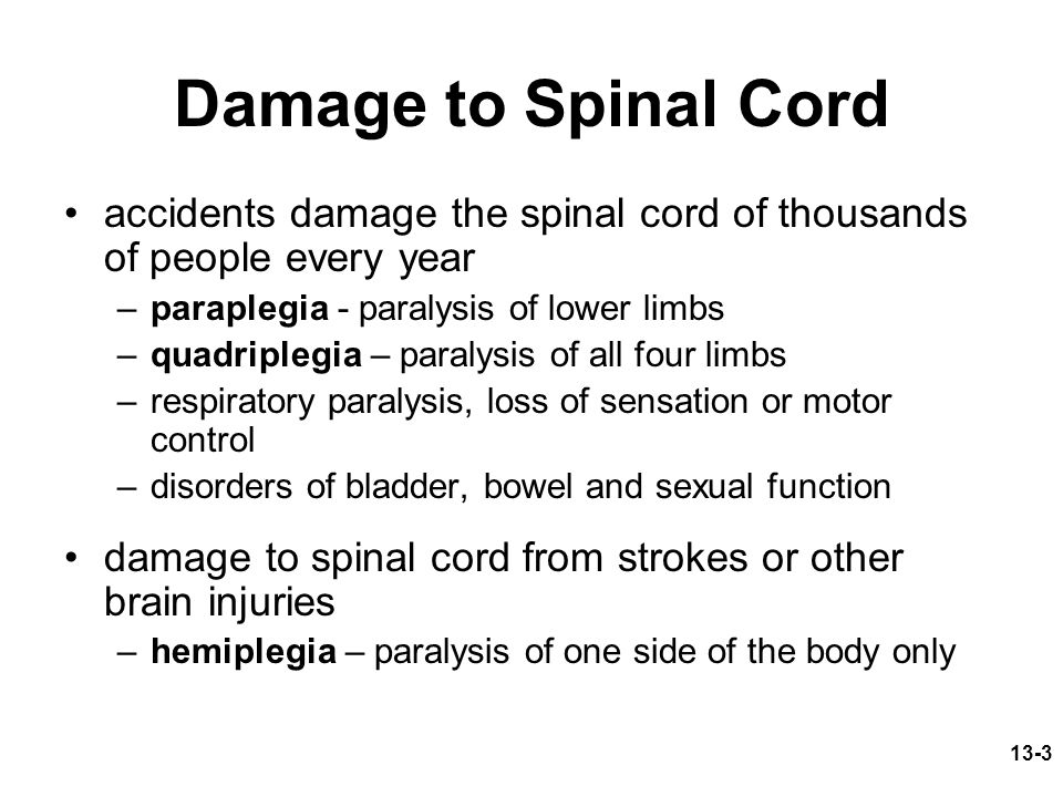 13-3 Damage to Spinal Cord accidents damage the spinal cord of thousands of people every year –paraplegia - paralysis of lower limbs –quadriplegia – p
