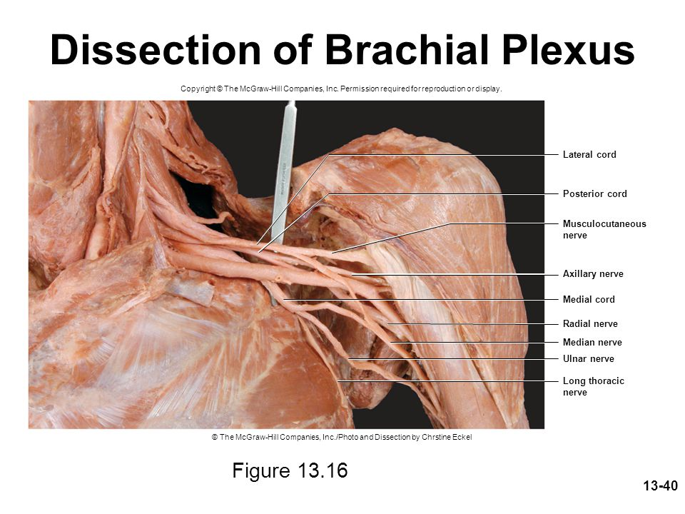 13-40 Dissection of Brachial Plexus Figure 13.16 Copyright © The McGraw-Hill Companies, Inc. Permission required for reproduction or display. Median n