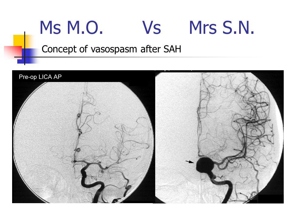 Ms M.O. Vs Mrs S.N. Concept of vasospasm after SAH