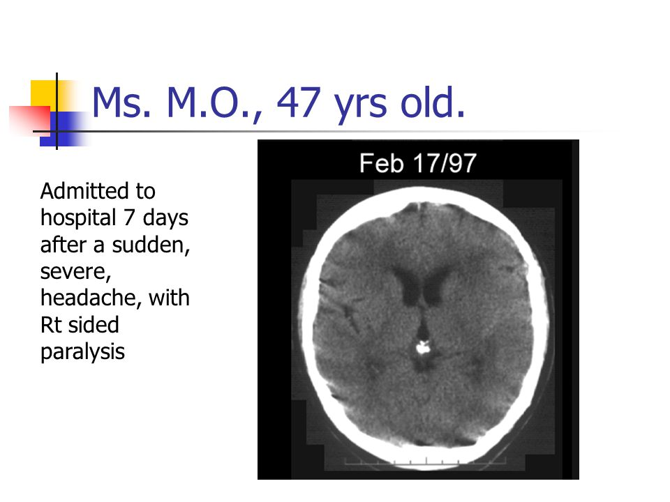 Ms. M.O., 47 yrs old. Admitted to hospital 7 days after a sudden, severe, headache, with Rt sided paralysis