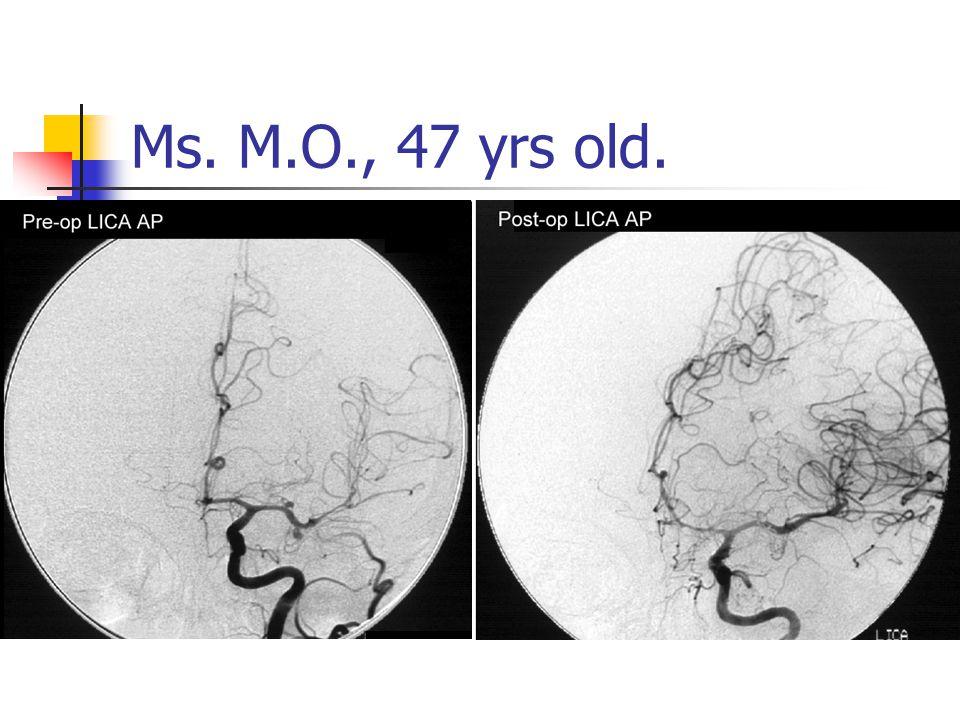 Ms. M.O., 47 yrs old.