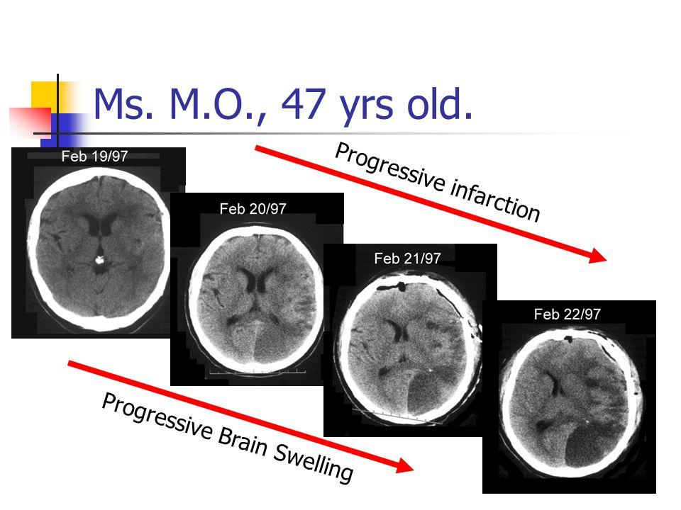 Progressive infarction Progressive Brain Swelling