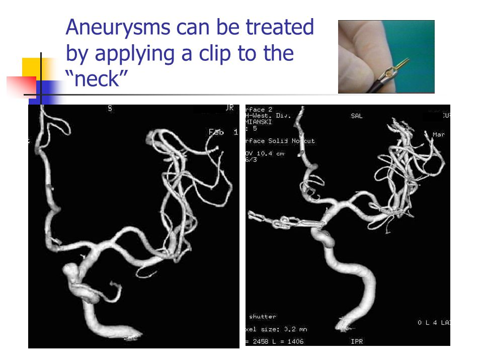 Aneurysms can be treated by applying a clip to the neck