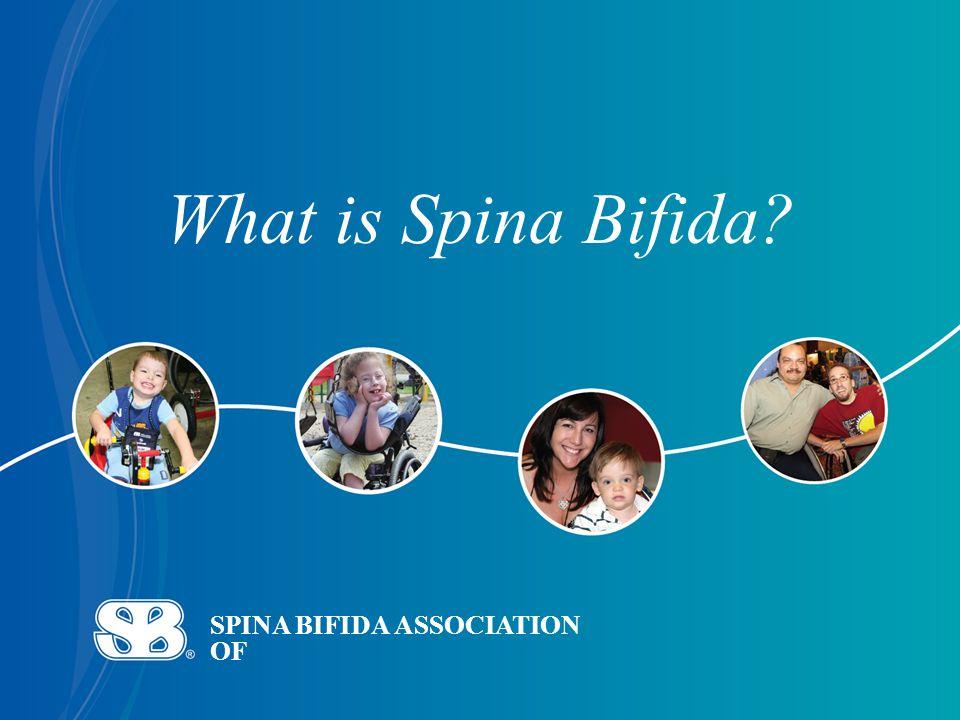 SPINA BIFIDA ASSOCIATION OF What is Spina Bifida