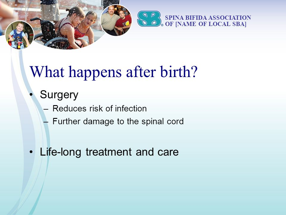 What happens after birth? Surgery –Reduces risk of infection –Further damage to the spinal cord Life-long treatment and care SPINA BIFIDA ASSOCIATION