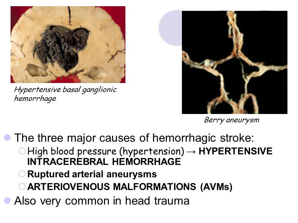 The three major causes of hemorrhagic stroke:  High blood pressure (hypertension) → HYPERTENSIVE INTRACEREBRAL HEMORRHAGE  Ruptured arterial aneurys