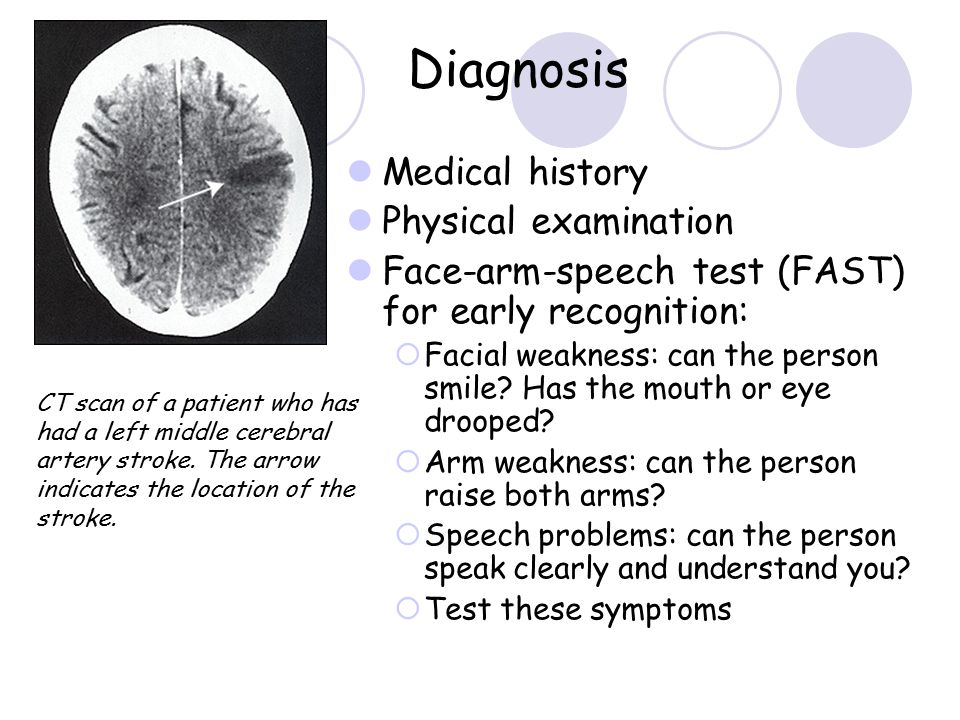 Diagnosis Medical history Physical examination Face-arm-speech test (FAST) for early recognition:  Facial weakness: can the person smile? Has the mou