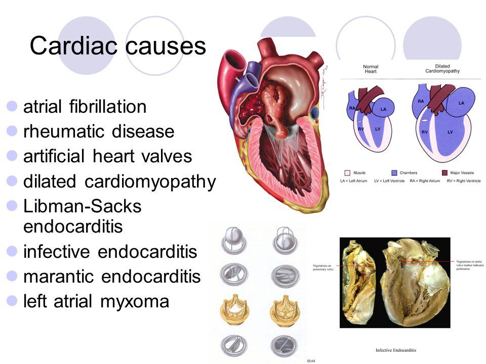Cardiac causes atrial fibrillation rheumatic disease artificial heart valves dilated cardiomyopathy Libman-Sacks endocarditis infective endocarditis m