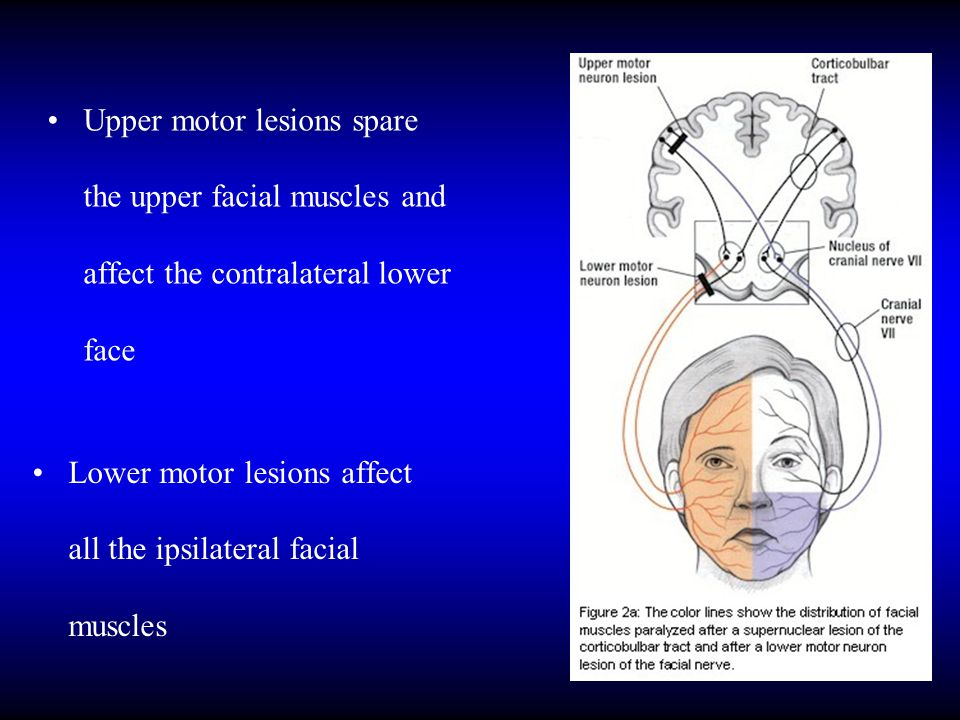 INFLAMMATORY CAUSES OF FACIAL PARALYSIS