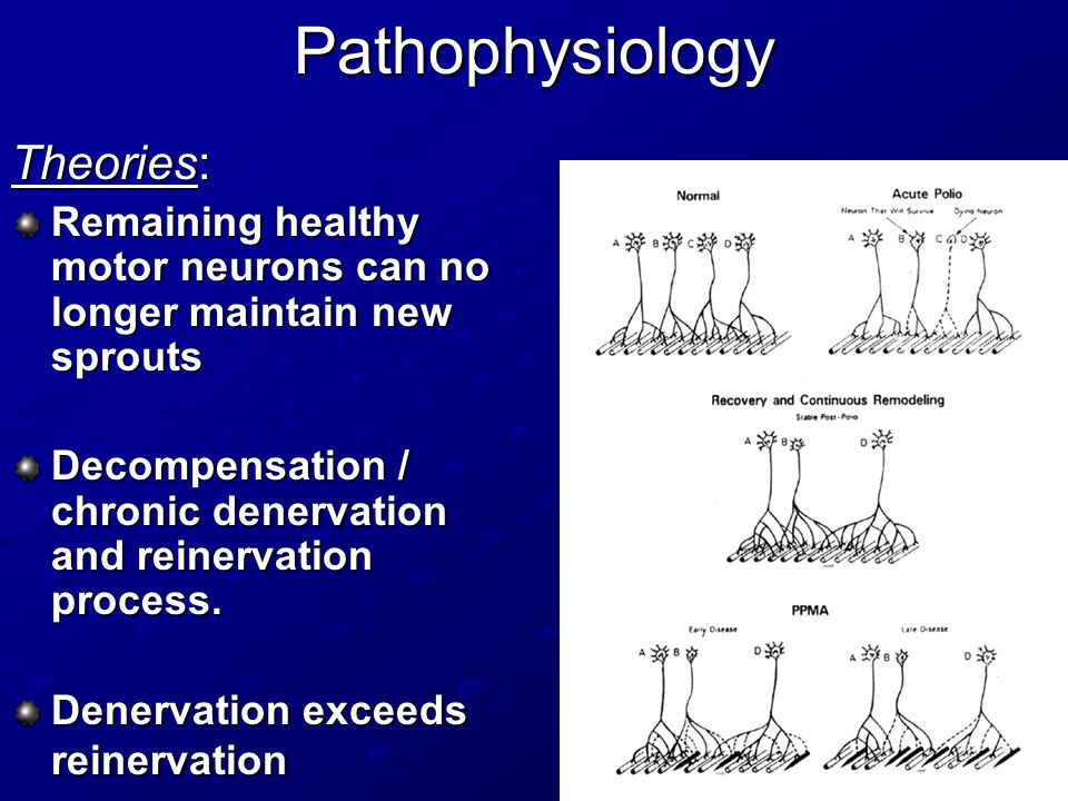 Pathophysiology Theories: Remaining healthy motor neurons can no longer maintain new sprouts Decompensation / chronic denervation and reinervation process.