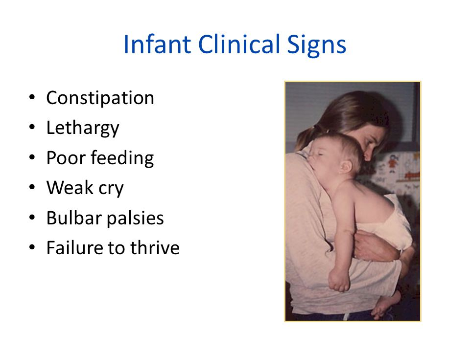 Infant Clinical Signs Constipation Lethargy Poor feeding Weak cry Bulbar palsies Failure to thrive