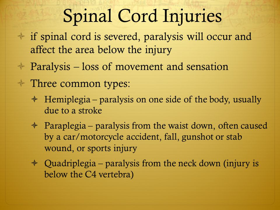 Spinal Cord Injuries  if spinal cord is severed, paralysis will occur and affect the area below the injury  Paralysis – loss of movement and sensation  Three common types:  Hemiplegia – paralysis on one side of the body, usually due to a stroke  Paraplegia – paralysis from the waist down, often caused by a car/motorcycle accident, fall, gunshot or stab wound, or sports injury  Quadriplegia – paralysis from the neck down (injury is below the C4 vertebra)