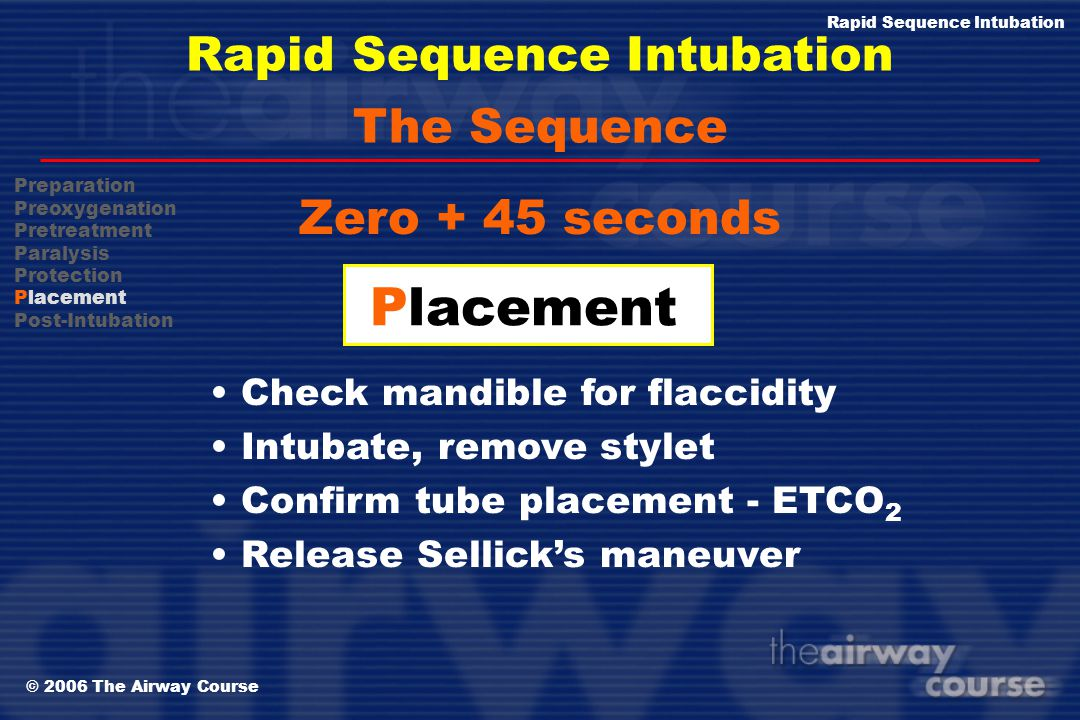 © 2006 The Airway Course Rapid Sequence Intubation Zero + 30 seconds Protection Sellick's Maneuver Position patient Do not bag unless S p O 2 < 90% Th