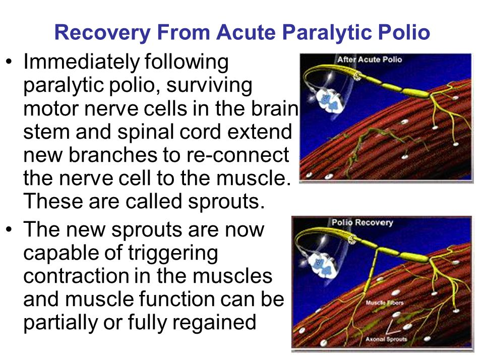 Recovery From Acute Paralytic Polio Immediately following paralytic polio, surviving motor nerve cells in the brain stem and spinal cord extend new br