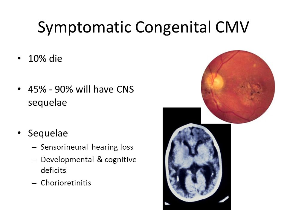 Symptomatic Congenital CMV 10% die 45% - 90% will have CNS sequelae Sequelae – Sensorineural hearing loss – Developmental & cognitive deficits – Chori