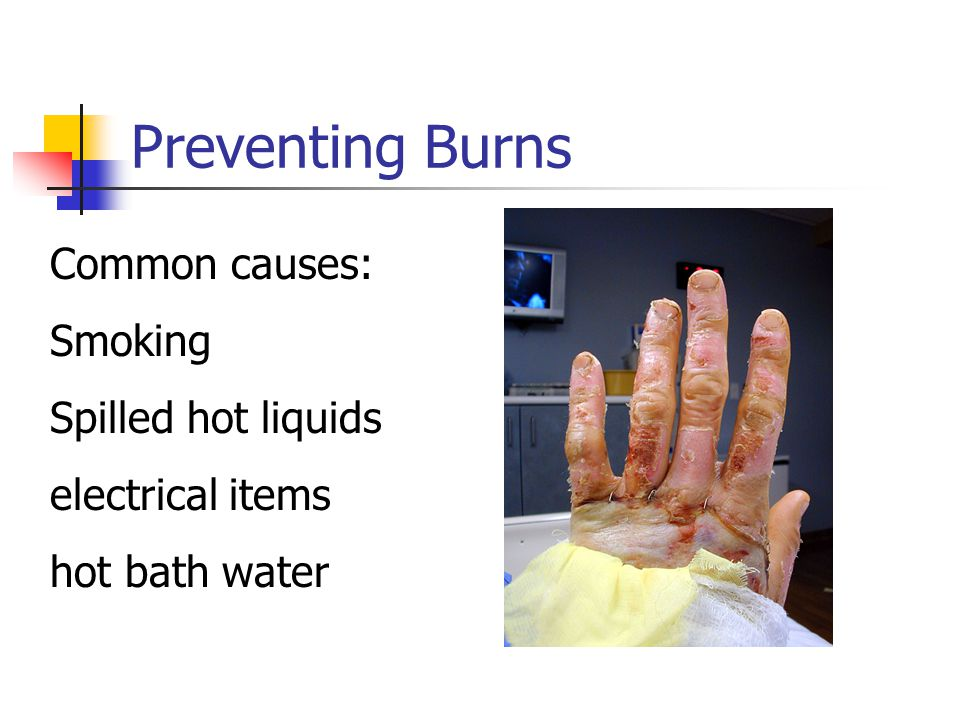 Preventing Burns Common causes: Smoking Spilled hot liquids electrical items hot bath water