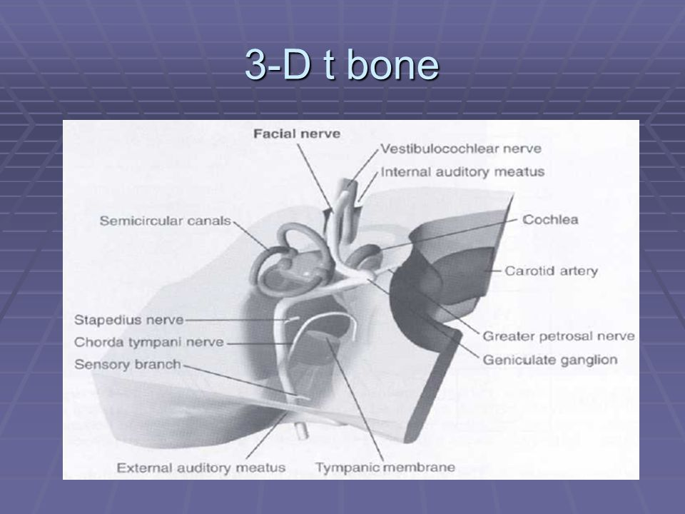 3-D t bone