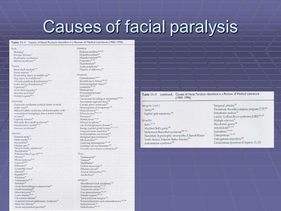 Causes of facial paralysis
