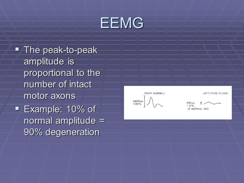 EEMG  The peak-to-peak amplitude is proportional to the number of intact motor axons  Example: 10% of normal amplitude = 90% degeneration