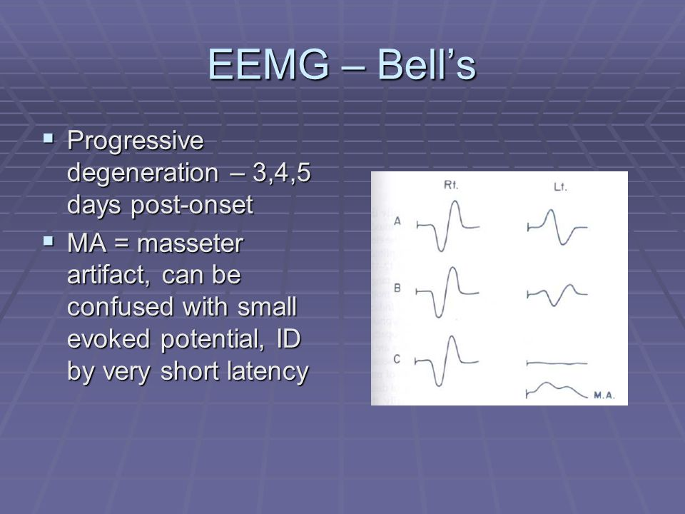 EEMG – Bell's  Progressive degeneration – 3,4,5 days post-onset  MA = masseter artifact, can be confused with small evoked potential, ID by very short latency