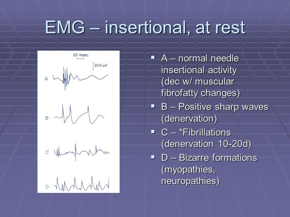 EMG – insertional, at rest  A – normal needle insertional activity (dec w/ muscular fibrofatty changes)  B – Positive sharp waves (denervation)  C – *Fibrillations (denervation 10-20d)  D – Bizarre formations (myopathies, neuropathies)