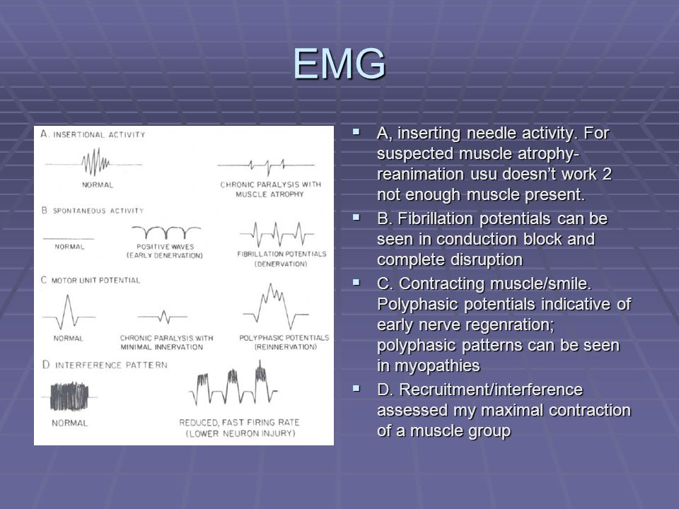 EMG  A, inserting needle activity.