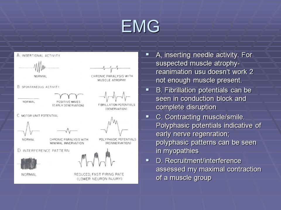 EMG  A, inserting needle activity.