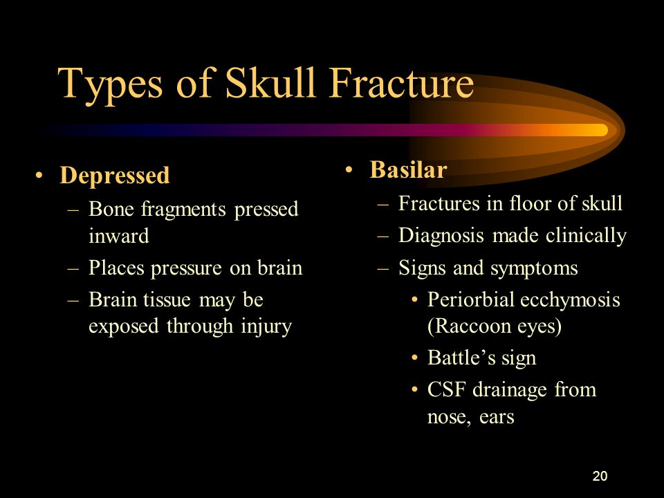 20 Types of Skull Fracture Depressed –Bone fragments pressed inward –Places pressure on brain –Brain tissue may be exposed through injury Basilar –Fractures in floor of skull –Diagnosis made clinically –Signs and symptoms Periorbial ecchymosis (Raccoon eyes) Battle's sign CSF drainage from nose, ears