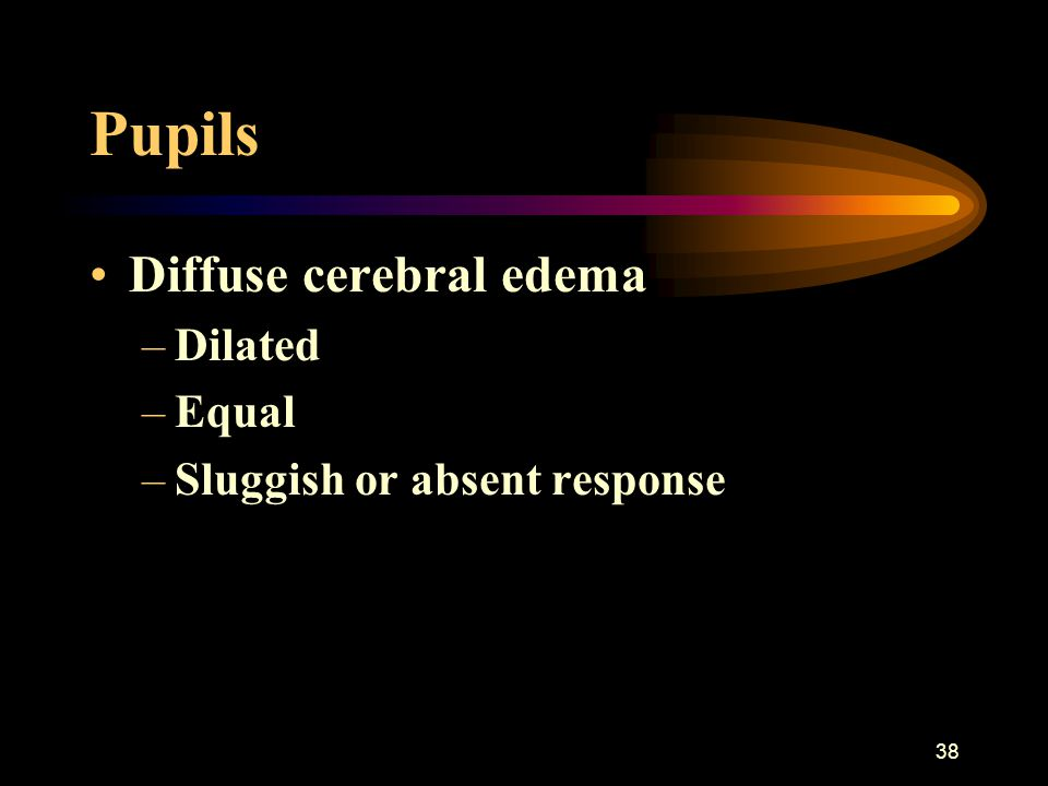 38 Pupils Diffuse cerebral edema –Dilated –Equal –Sluggish or absent response