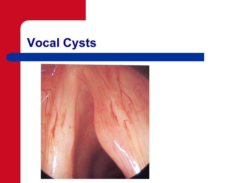 Vocal Cysts