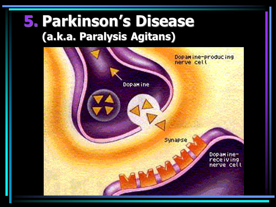 5.Parkinson's Disease (a.k.a. Paralysis Agitans)