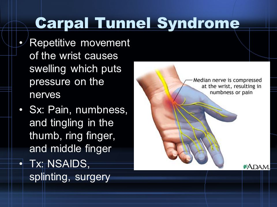 Carpal Tunnel Syndrome Repetitive movement of the wrist causes swelling which puts pressure on the nerves Sx: Pain, numbness, and tingling in the thumb, ring finger, and middle finger Tx: NSAIDS, splinting, surgery