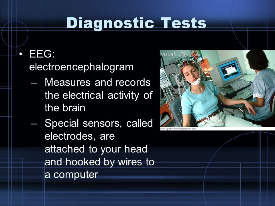 Diagnostic Tests EEG: electroencephalogram –Measures and records the electrical activity of the brain –Special sensors, called electrodes, are attache