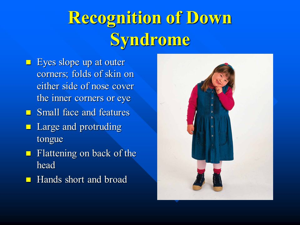 Recognition of Down Syndrome Eyes slope up at outer corners; folds of skin on either side of nose cover the inner corners or eye Eyes slope up at outer corners; folds of skin on either side of nose cover the inner corners or eye Small face and features Small face and features Large and protruding tongue Large and protruding tongue Flattening on back of the head Flattening on back of the head Hands short and broad Hands short and broad