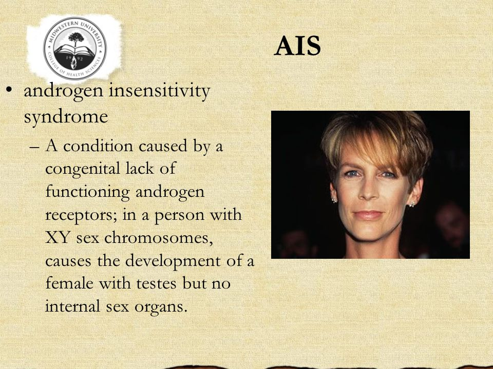 AIS androgen insensitivity syndrome –A condition caused by a congenital lack of functioning androgen receptors; in a person with XY sex chromosomes, causes the development of a female with testes but no internal sex organs.