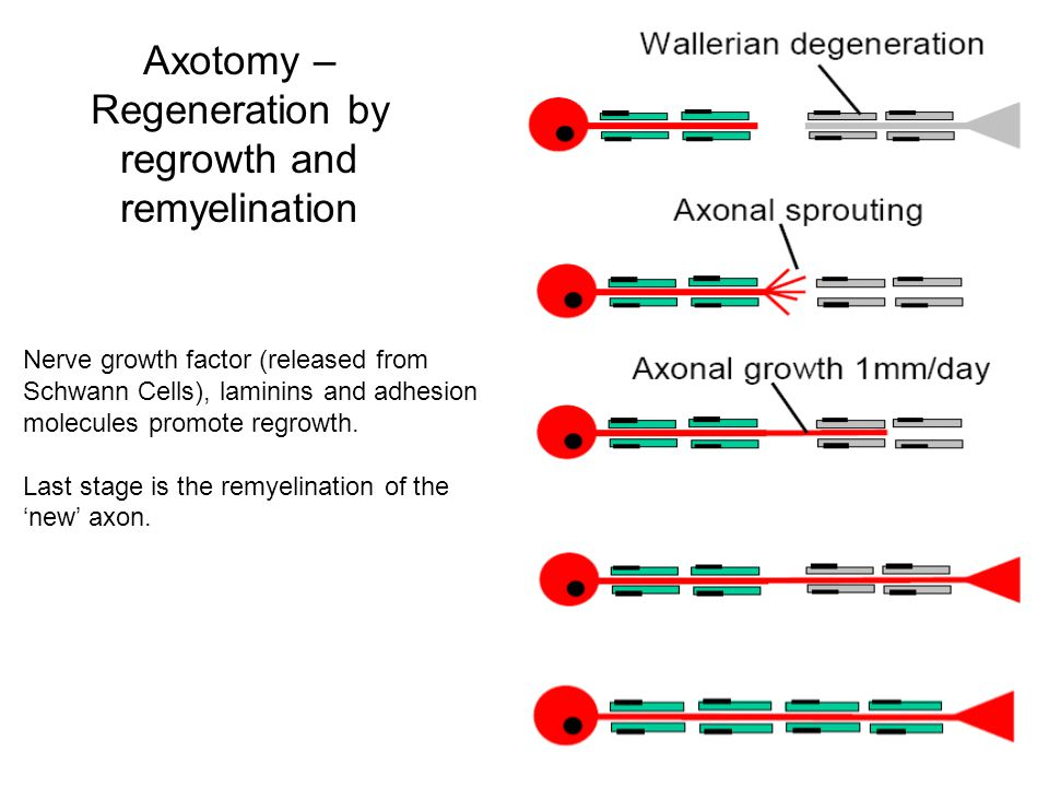 Axotomy – Regeneration by regrowth and remyelination Nerve growth factor (released from Schwann Cells), laminins and adhesion molecules promote regrow